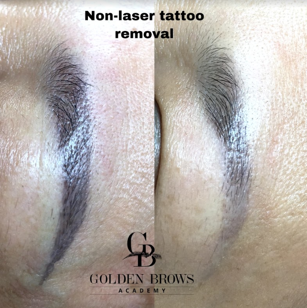 TATTOO REMOVAL (NON-LASER)